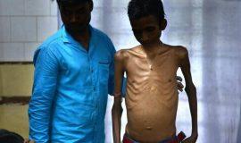 Rohim Sarkar during his check-up at a hospital in Malda